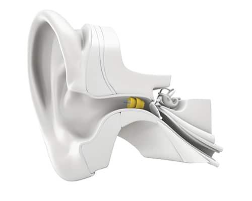 Schéma position LYRIC dans l'oreille